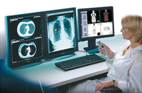هوش مصنوعی و رادیوگرافی
